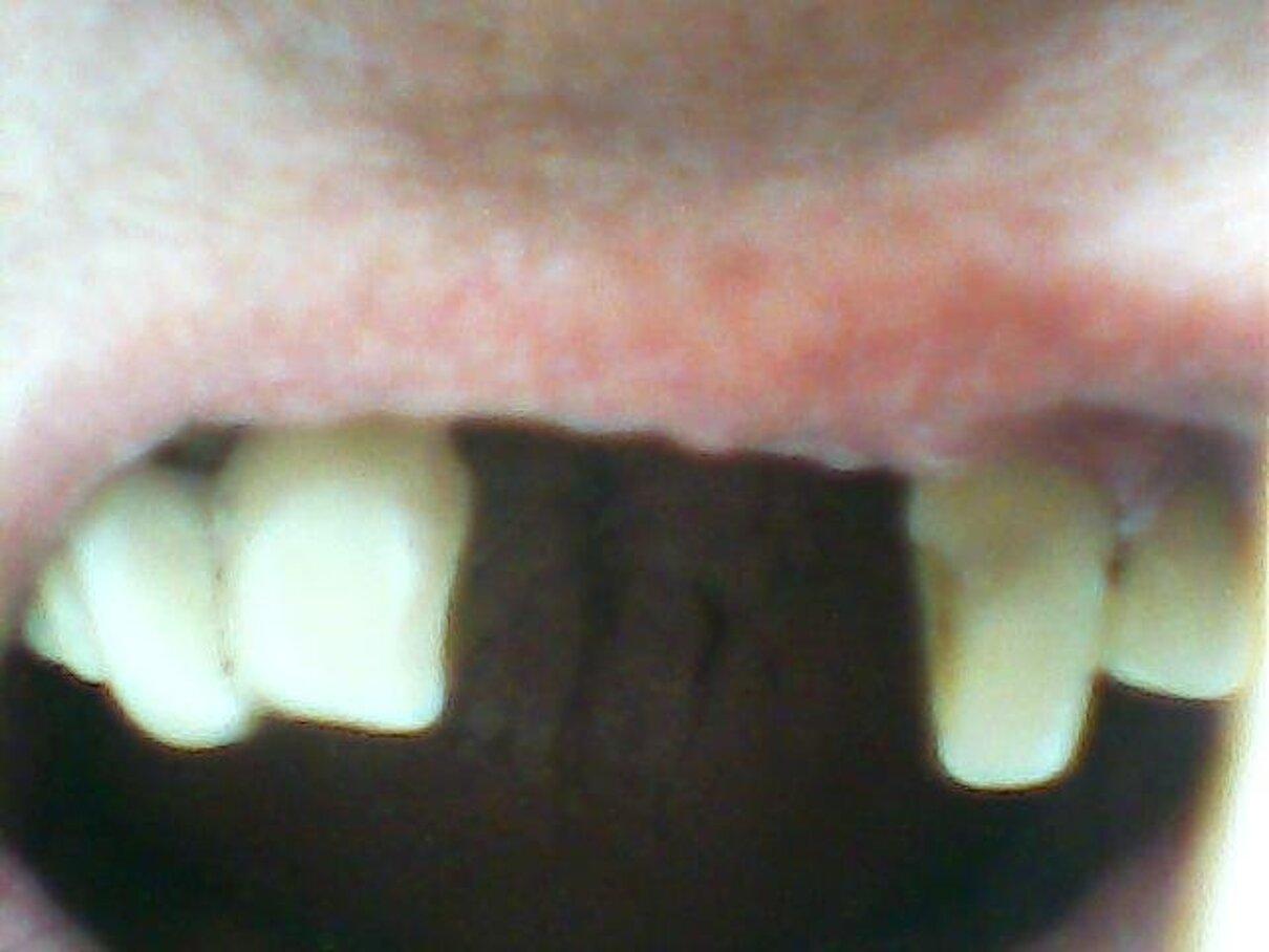 Жалоба-отзыв: Центр социальной стоматологии - Куплю