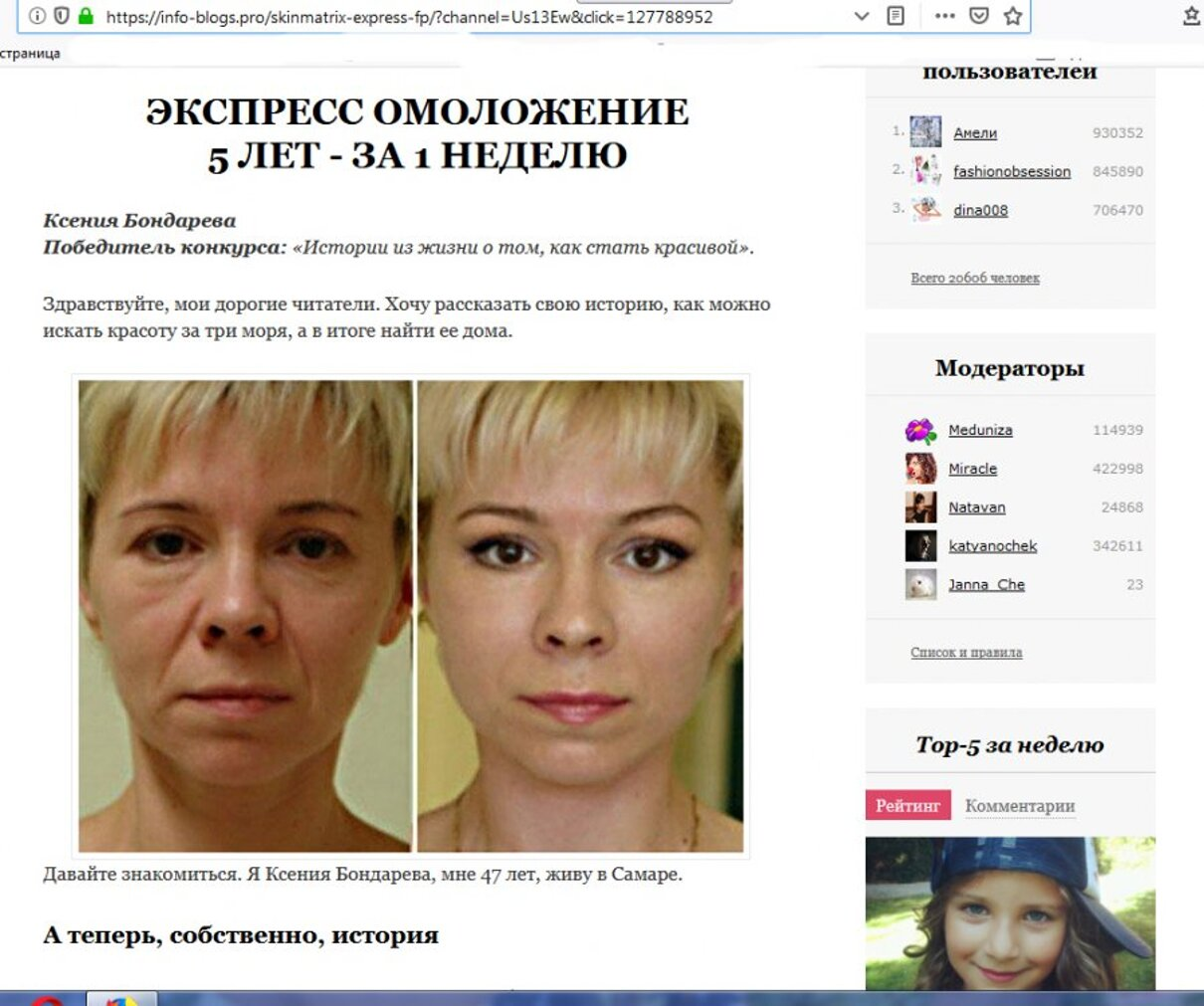 Жалоба-отзыв: Назойливая и недостоверная реклама - Средства для размещения фотографий после пластических операций